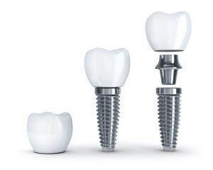 Zahnarzt Schwäbisch Hall, Zahnarztpraxis Schwäbisch Hall, prophylaxe schwäbisch hall, implantate schwäbisch hall